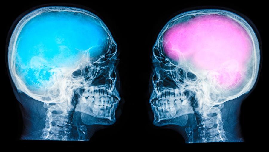 700a8be095fb2b Różnica między mózgiem kobiety i mężczyzny - różnice między kobietą ...