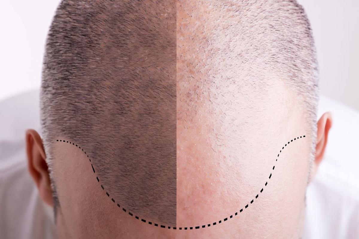 łysienie U Mężczyzn Recepta Na Wypadanie Włosów U Mężczyzn